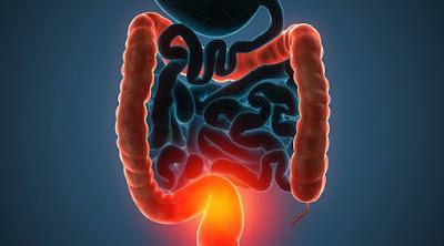 Enfermedad inflamatoria intestinal enfermedad Crohn