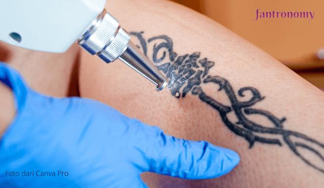 Ingin Menghapus Tato Secara Permanen, Coba Laser Tattoo Removal di SehatQ.com Saja!