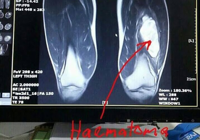 MRI Paha Safiq Rahim Ternampak Zakar Viral