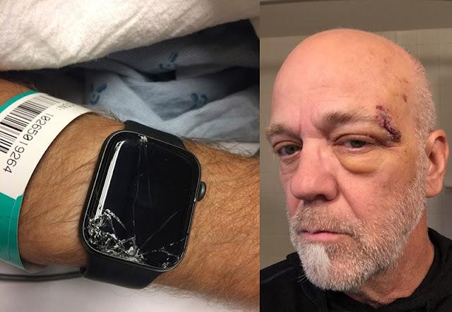 ساعة أبل تنجح في إنقاذ حياة رجل من الموت