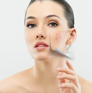 Adults Suffer from Acne