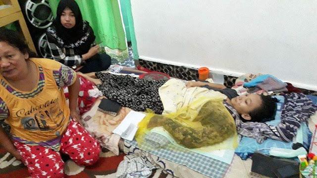 Afnida Duma Sari Saragih (17), siswi SMA Sultan Agung Siantar mengidap tumor ganas dikunjungi Yayasan Sultan Agung,guru-guru SMA Sultan Agung beserta teman-temannya, Selasa (2/5/2017).