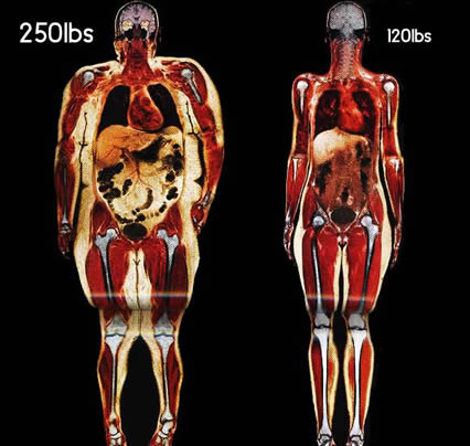 Review of 200 Studies Confirms That Every Pound Gained Increases Risk of Many Cancers