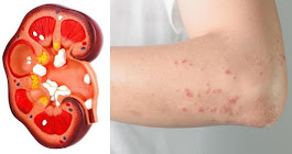 If Your Kidney Is In Danger, The Body Will Give You These 8 Signs