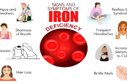 Iron deficiency occurs when the intake and absorption of iron are insufficient to replenish the body's loss