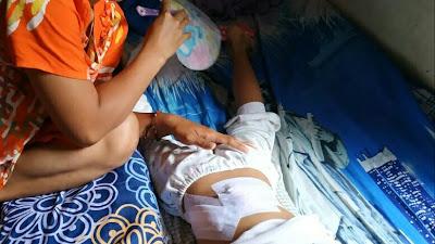 RESAH, Anak-anak di Simalungun Diserang Monyet, Ada yang Luka Robek 42 Jahitan