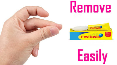 How to remove feviquick from skin