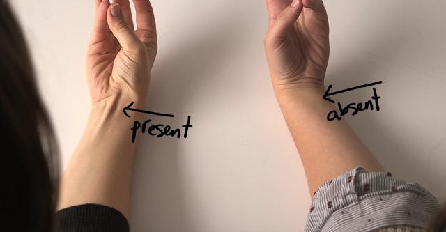 iata ce reprezinta acest tendon