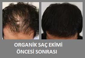 organik saç ekimi yorumları