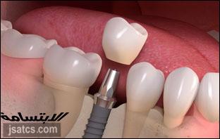 اسعار زراعة الاسنان في الشارقة