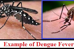 What's Dengue Fever? What causes Dengue Fever? How to Recognize Causes Dengue Fever?  Read more