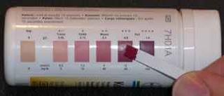 idrarda keton testi