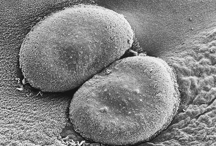 Bakteria Penyakit Pneumukokal
