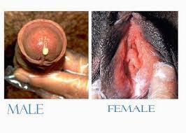 Obat Kemaluan Wanita Keluar Nanah