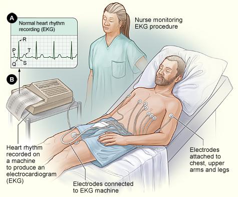 Man having ECG