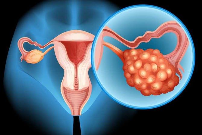 أعراض سرطان المبيض وأسبابه وعوامل خطر الإصابة به