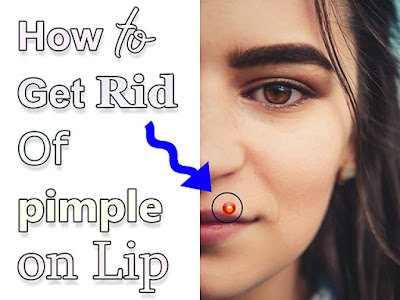 How to Get Rid Of   pimple on lips
