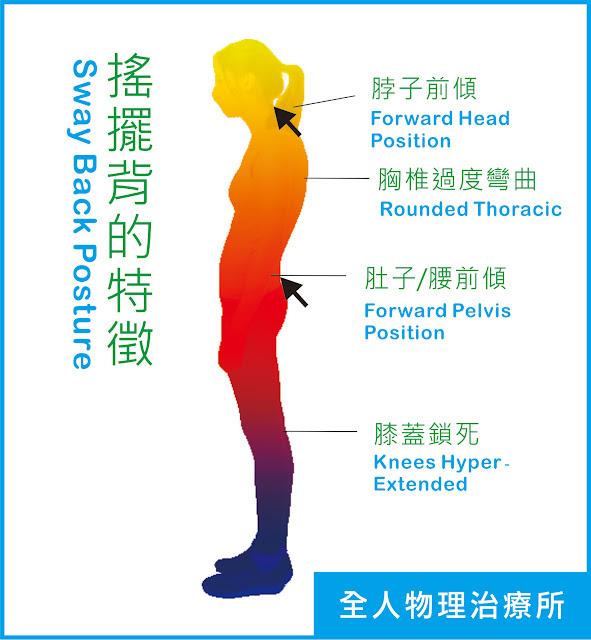#新竹物理治療 #新竹運動治療 #搖擺背站姿 #新竹徒手治療 #腰酸背痛 #肩頸痠痛 #站姿調整 #核心肌群訓練 #背肌肌力訓練