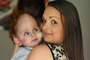 The Amazing Story of the Boy Born with No Brain (Photos)