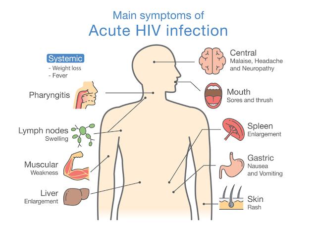 Symptoms of HIV/AIDS