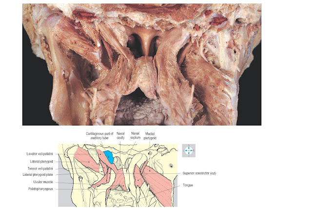 Posterior view of soft palate after removal of cervical vertebral column and posterior wall of pharynx. On the left side, the medial pterygoid and the mucosa of the soft palate have been removed to reveal the muscles.
