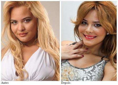 Geisy Arruda - cirurgia plastica antes e depois
