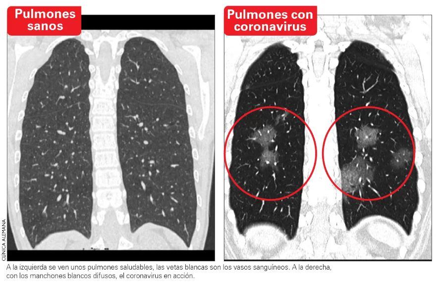 Escáner muestra pulmones afectados por coronavirus antes que el test