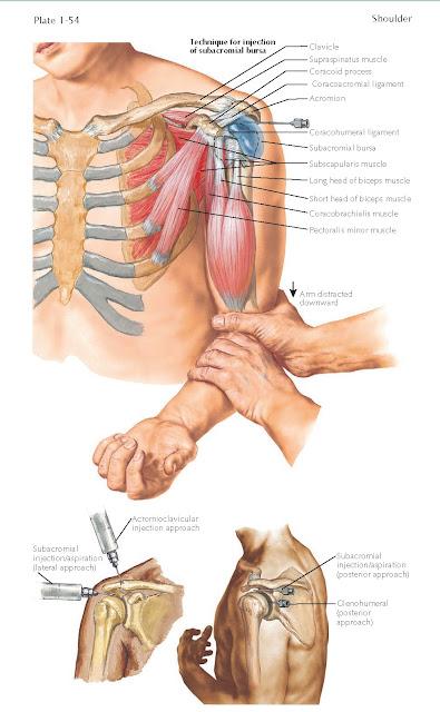 Shoulder Injections