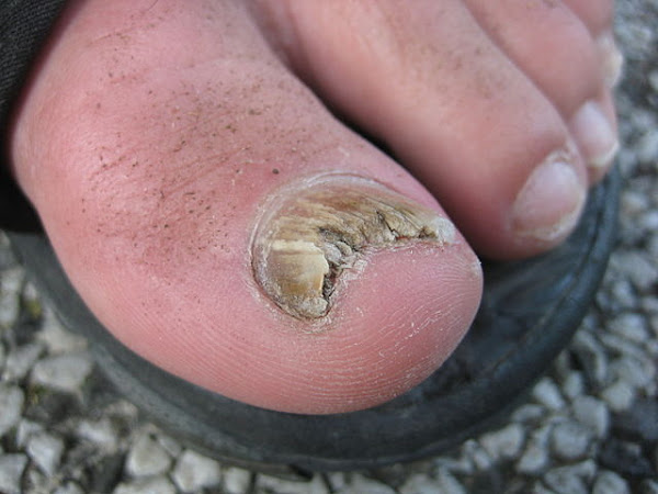 Toe Fungus and Home Remedies