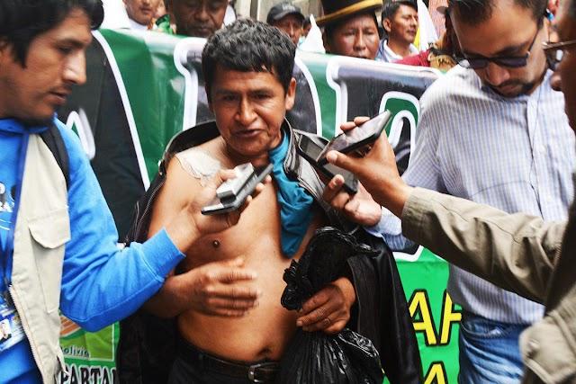 Yungas denuncia 600 heridos en dos años de intervención