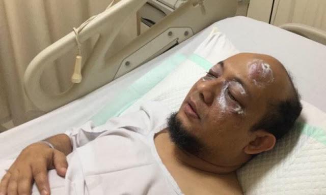 500 Hari Kasus Novel, KPK: Pelaku Belum Terungkap, Netizen: Masa Sih? Teroris 3 Menit Bisa Diungkap