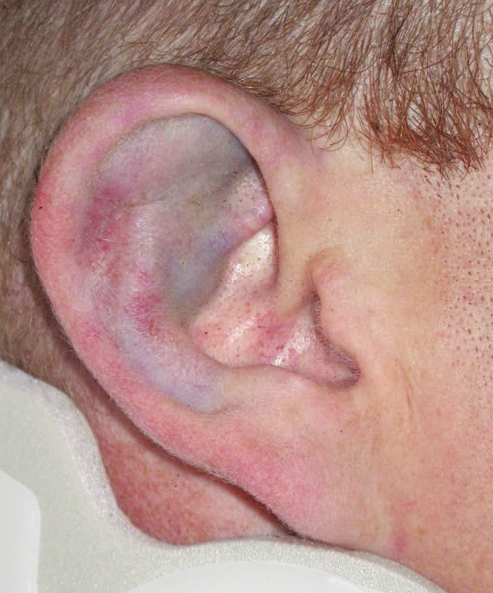 Картинка поврежденное ухо