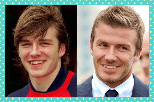 David Beckham Eski Yeni Dişleri