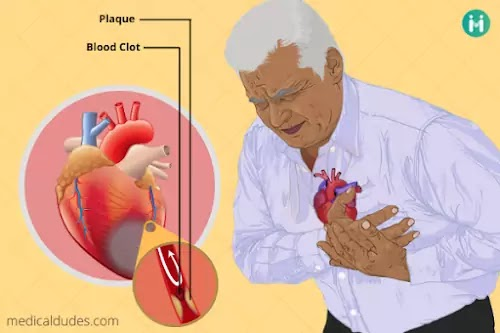 Heart Attack: types, causes, symptoms, diagnosis, treatment