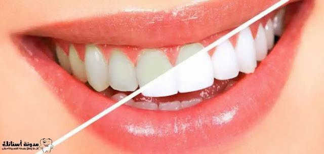5طرق لتبييض الأسنان في المنزل.