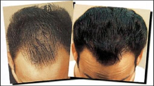 وصفة سحرية لإعادة إنبات الشعر من جديد وملىء الفراغات
