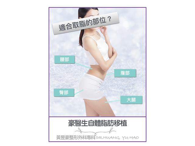 高雄自體脂肪移植部位