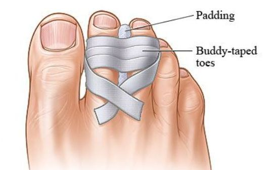 Broken Toe Care: Health Tip