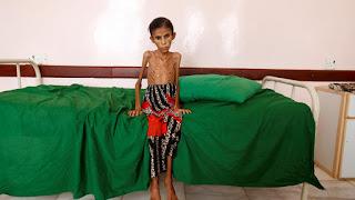 Εικόνες γροθιά στο στομάχι: Ετσι πεθαίνουν τα παιδιά της Υεμένης...