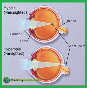 7 Cause The Eyes To Become Farsightedness