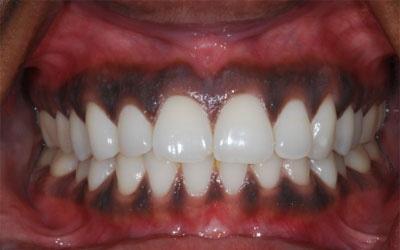 yang pertama akan terlihat bukan hanya kerapihan barisan gigi tetapi juga gusi Mengapa Gusi Berwarna Gelap?