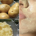 3 Easy Ways To Get Rid Dark Spots, Hyper Pigmentation and Rough Skin Fast