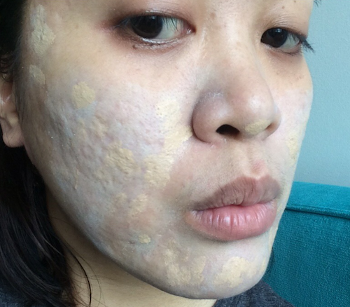 makeup to cover acne pock marks