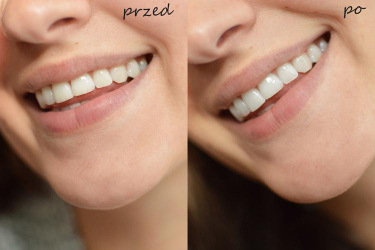 wybielanie zębów sodą oczyszczoną efekty