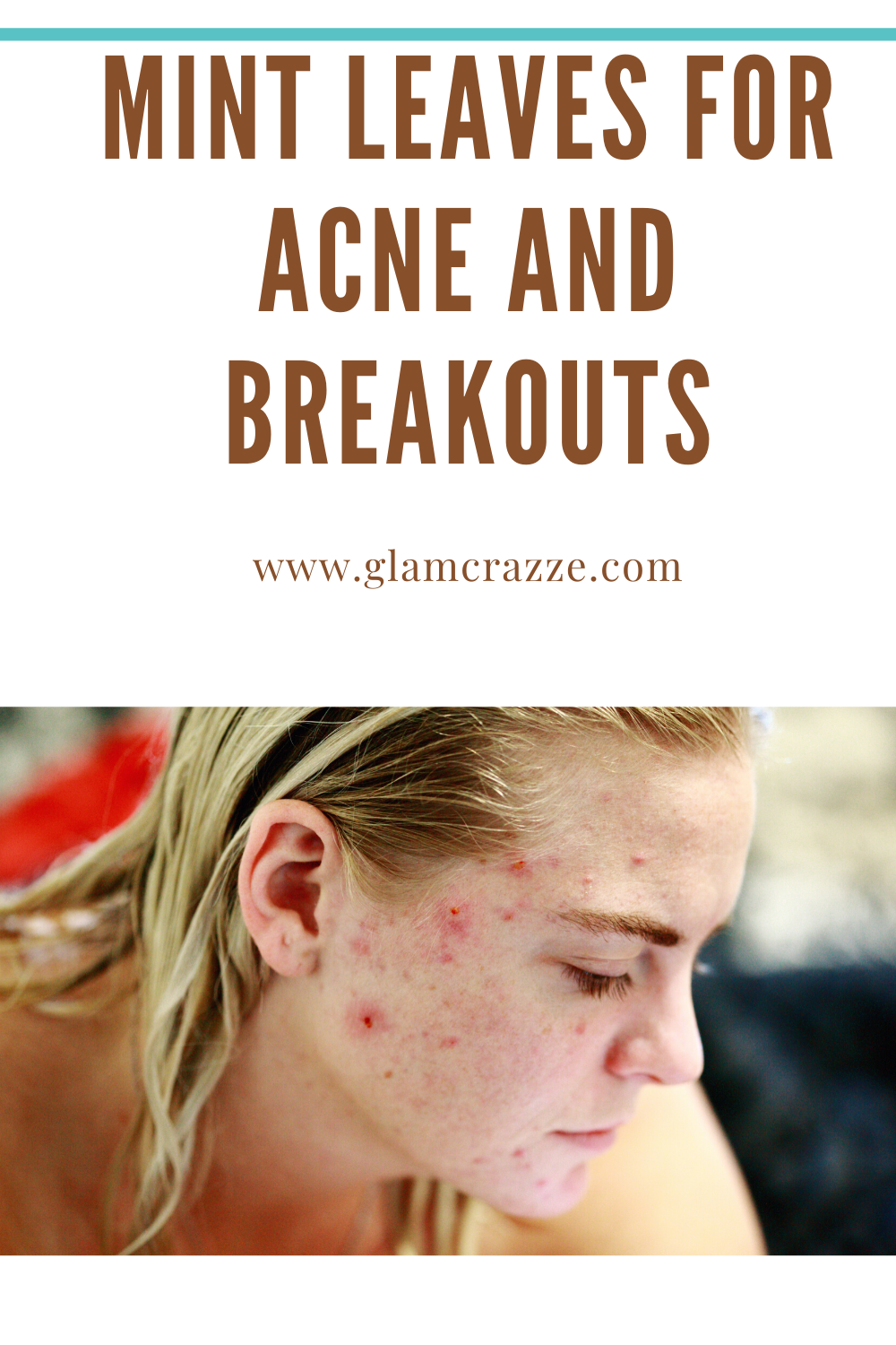 Get rid of acne and achieve clear skin using this home remedies
