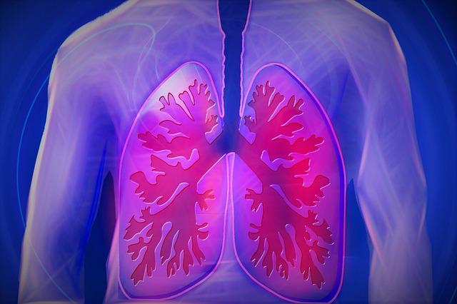 paru ialah organ pada sistem yang berafiliasi dengan peredaran darah Gejala Penyakit Paru-paru Basah