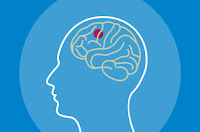 World brain tumour day 2020 observed on June 8