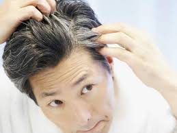 vitamins and foods to prevent gray hair