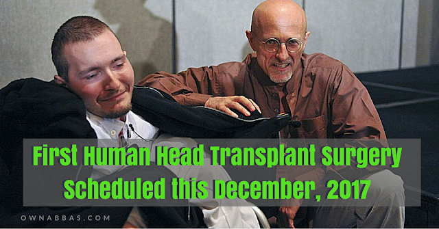 Valery Spiridonov is a Russian voulnteer for First Human Head Transplant Surgery Scheduled this December, 2017