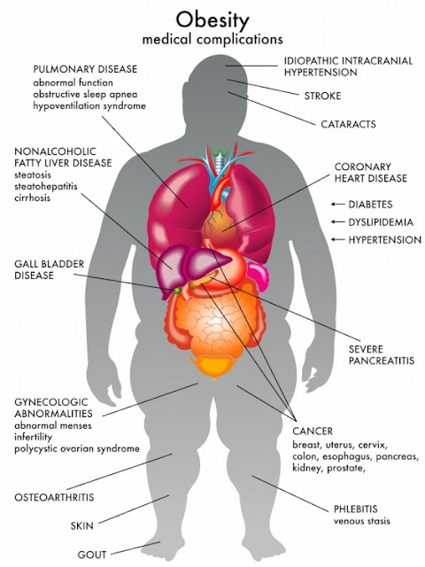Sakit kronik akibat obesiti